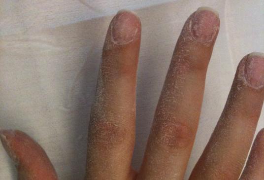Le microorganisme végétal des ongles chez les enfants dans 2 ans